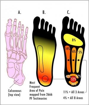 Pain Zones of plantar fascitis